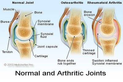 Exercise and joint pain illustrated